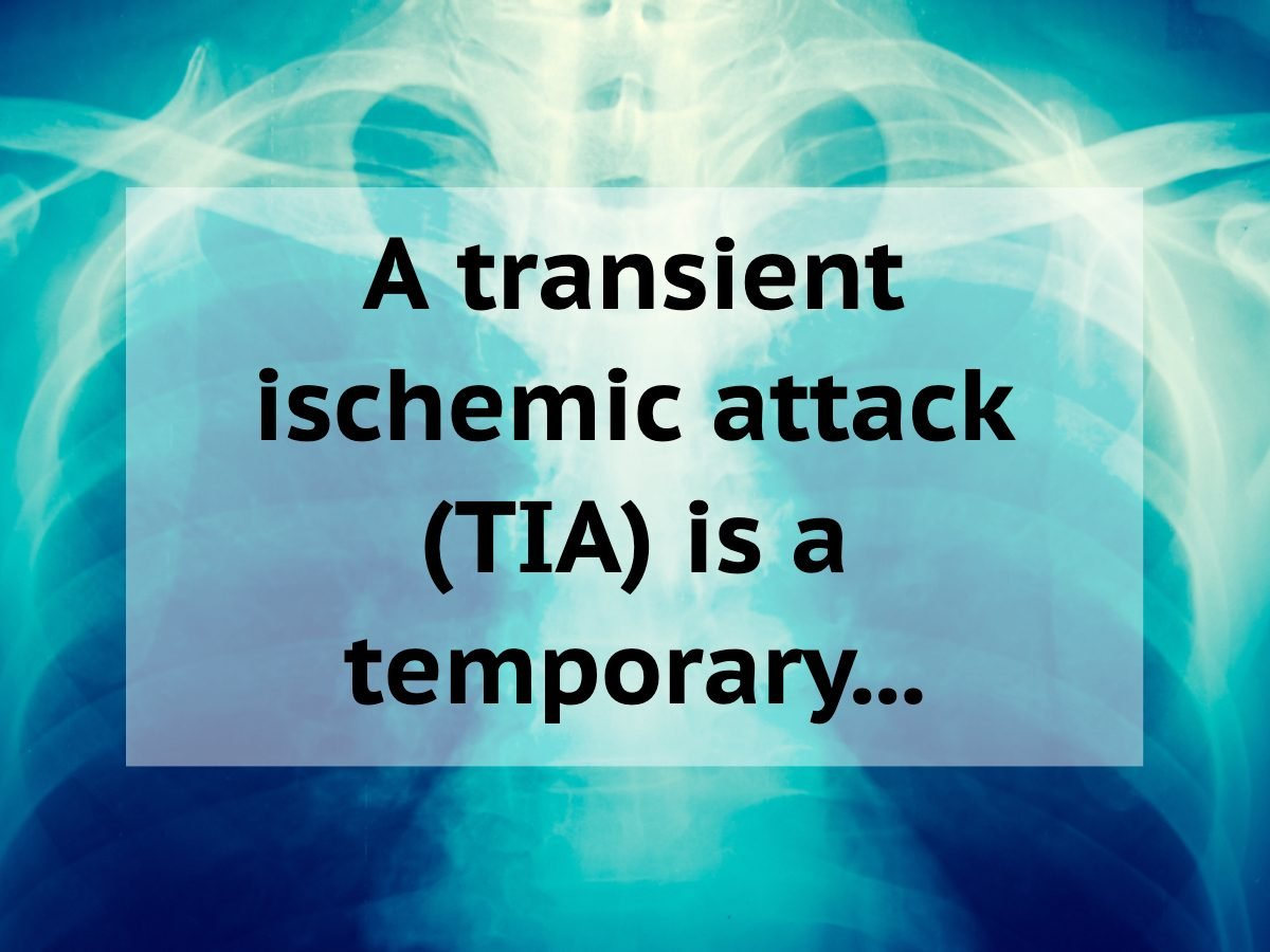 Medical trivia questions - transient ischemic attack