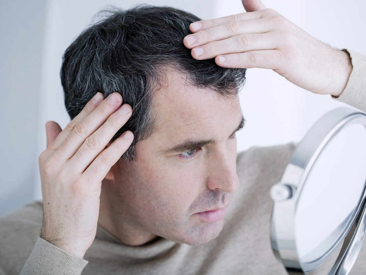 Man examining his receding hairline in the mirror