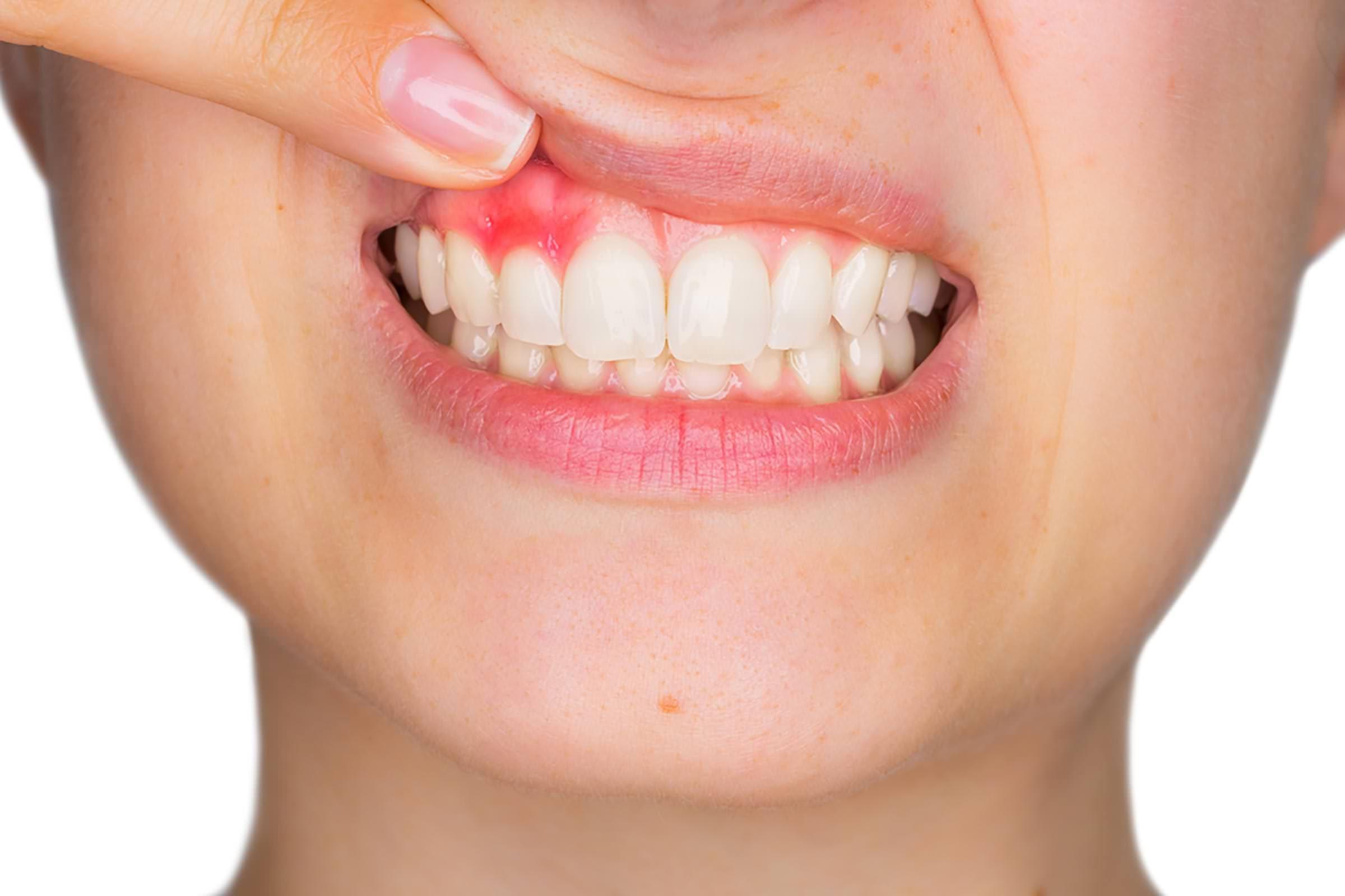 closeup of woman's gums