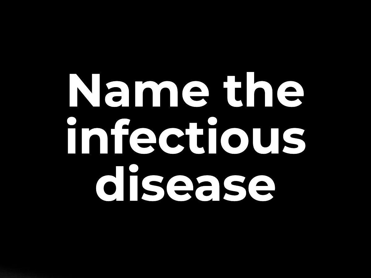 Name the infectious disease