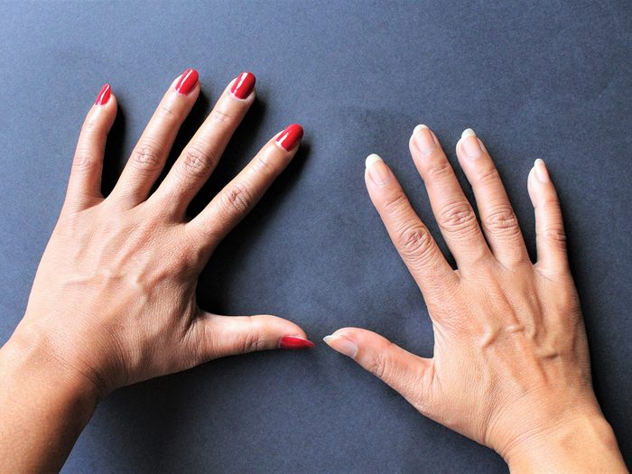 Hands with and without nail polish