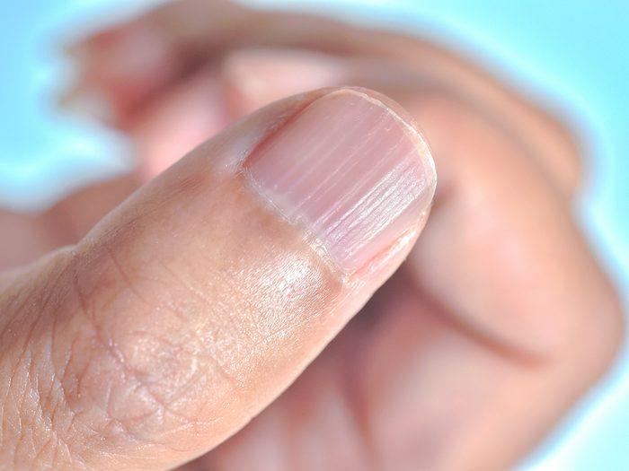Ridges in fingernails