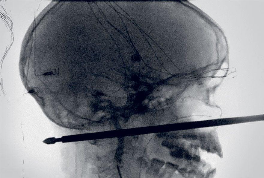 medical mystery - boy with skewer head xray