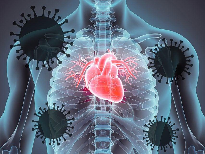 Coronavirus heart damage - body graphic