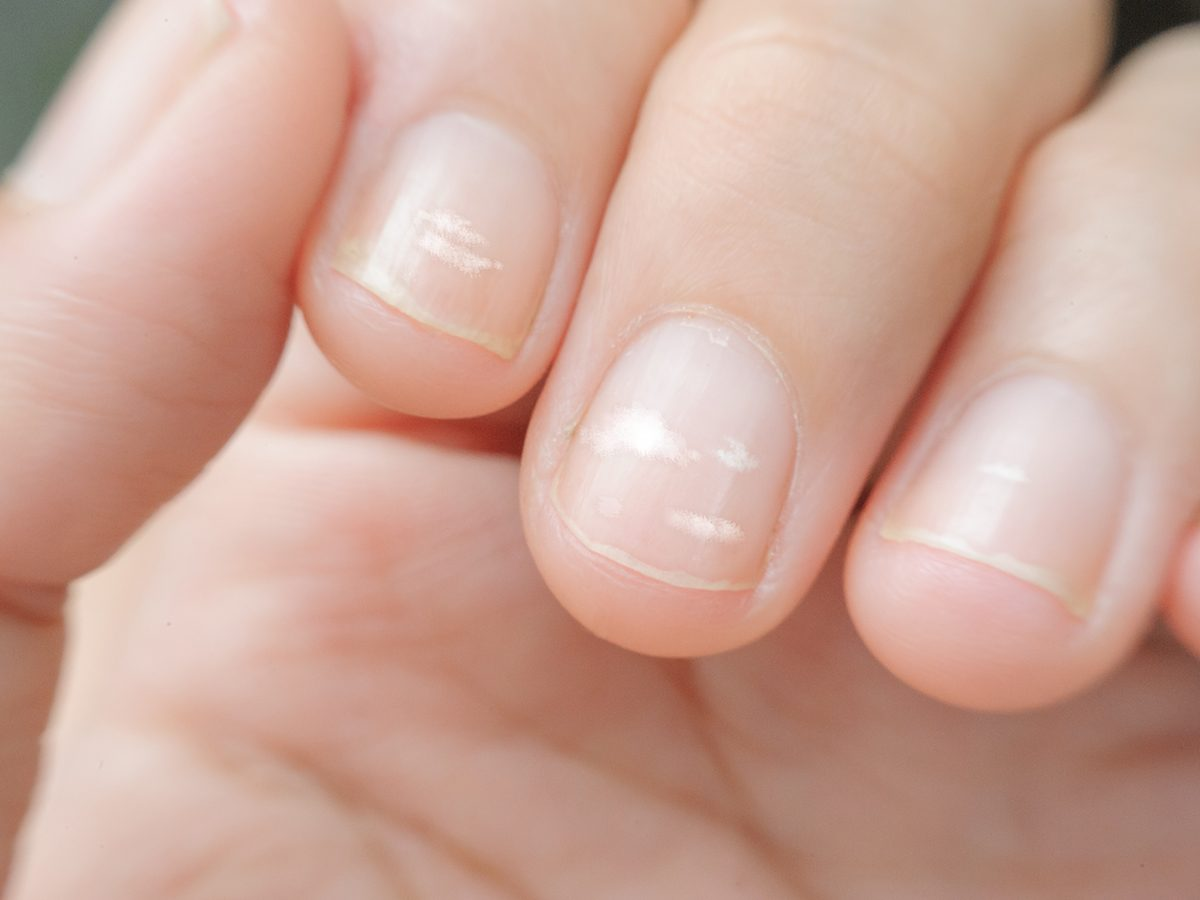 close up white spot on finger nails called leukonychia, sickness concept